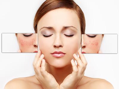 facial-redness-image