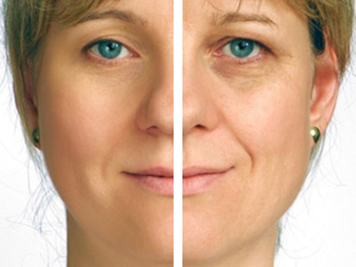 services-aging-skin